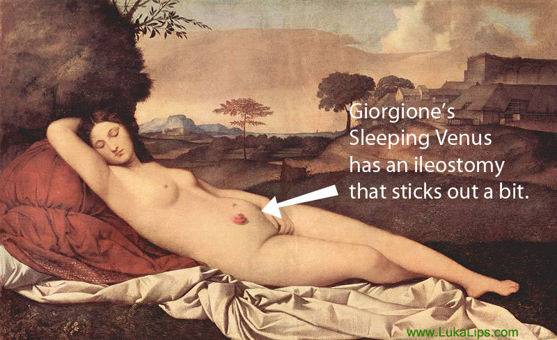 Giorgione sleeping Venus with ileostomy